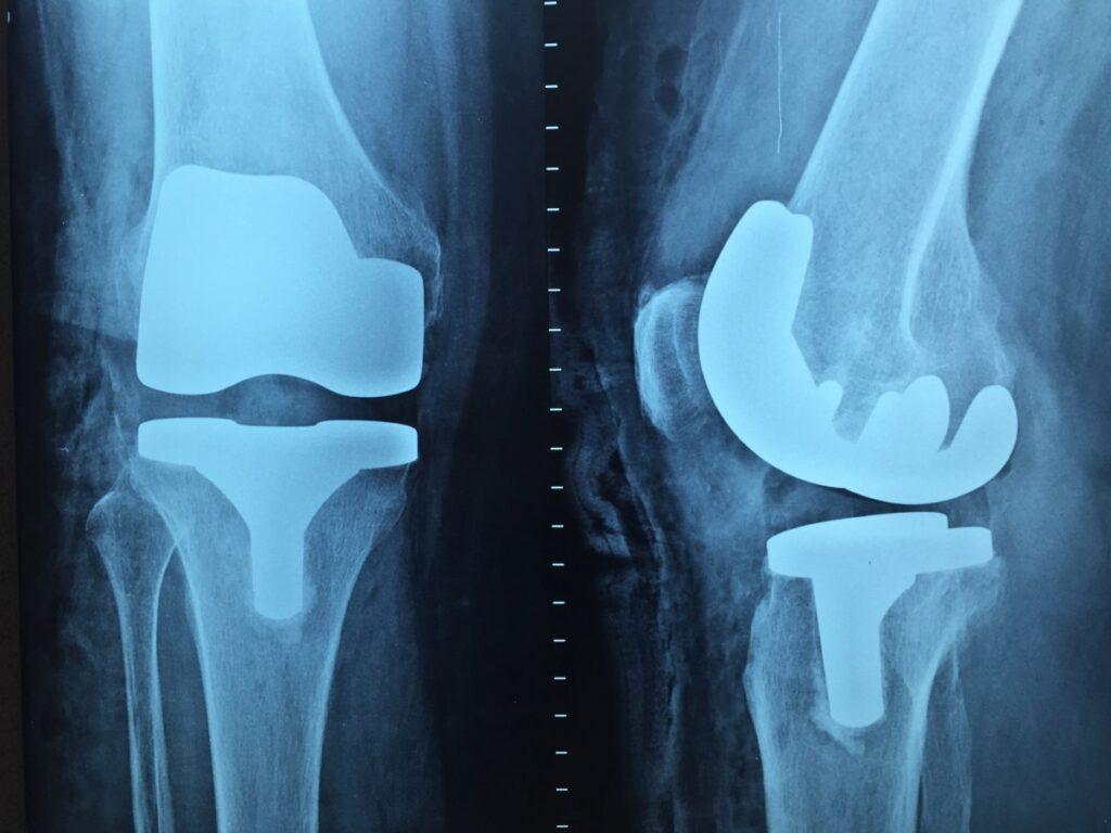 Ортопедические операции и травматология